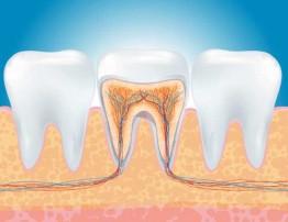 endodonzia