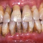 parodontite-con-rx-1