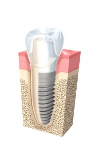 implantologia_ragusa