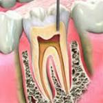 endodonzia_310x166