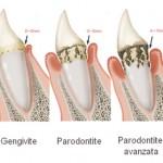 parodontologia-img1